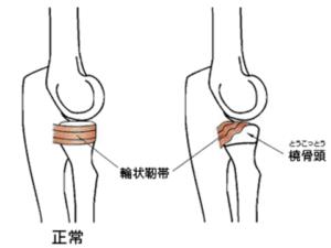 小児の肘内障